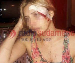 foto: Propinó feroz golpiza a ex pareja y luego decidió quitarse la vida