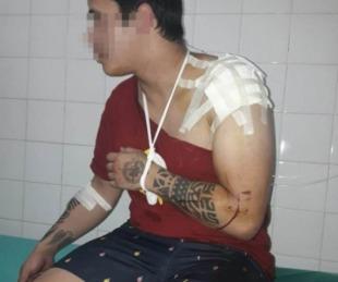 foto: Le gatillaron en la cabeza para robarle el celular, no salió la bala