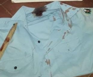foto: Una mujer hirió a un policía para ayudar a escapar a dos demorados