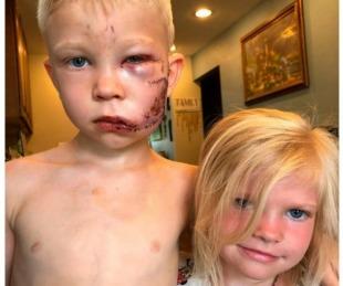 foto: El niño héroe que salvó a su hermanita del ataque de un perro