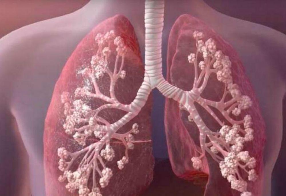 Se promulgó la ley de fibrosis quística: qué cambia con el veto parcial