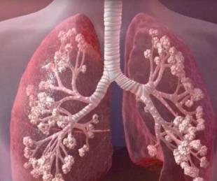 foto: Se promulgó la ley de fibrosis quística: qué cambia con el veto parcial