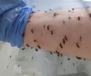 foto: Se dejó picar por mil mosquitos buscando la forma de combatir al dengue
